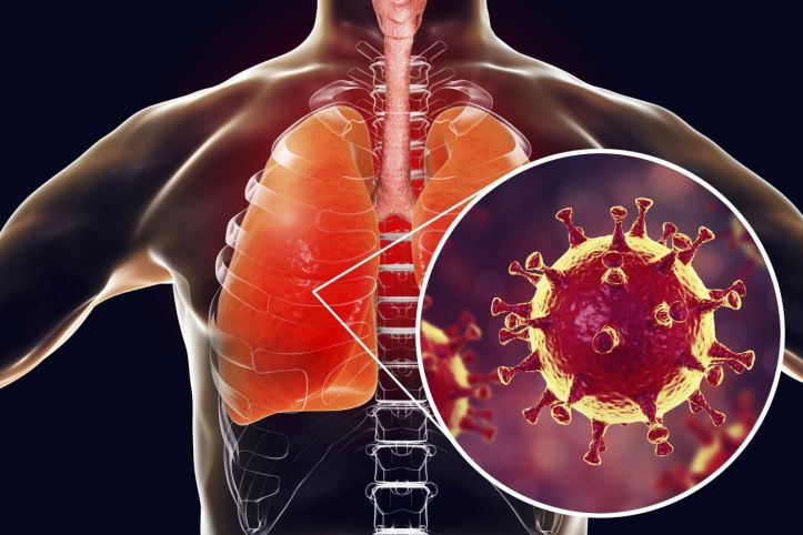 MERS virus, Meadle-East Respiratory Syndrome coronavirus